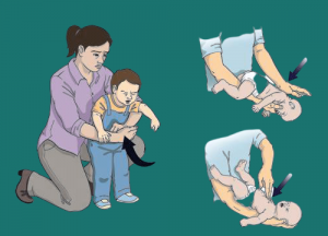 First aid for choking in children